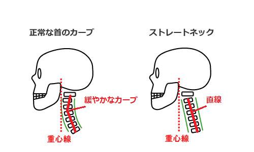首のカーブにはストレートネック矯正枕